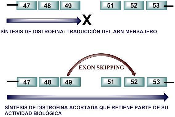 distrofia muscular de duchenne pdf